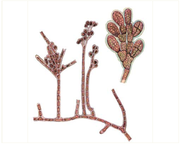 Родохортон пурпурный (Rhodochorton purpureum (Lightf.) Rosenv.)