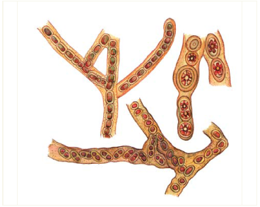 Chroodactylon wolleanum Hansg. /=Asterocystis wolleana (Hansg.)Lagerh./