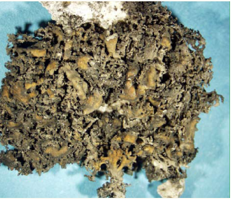 Сейрофора загадкова, ксантоанаптіхія загадкова (Seirophora contortuplicata (Ach.) Froden (Xanthoanaptychia contortuplicata (Ach.) S. Kondratyuk))