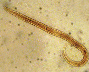 Хромадорина двуглазая (Chromadorina bioculata  (Schultze, in Carus, 1857))